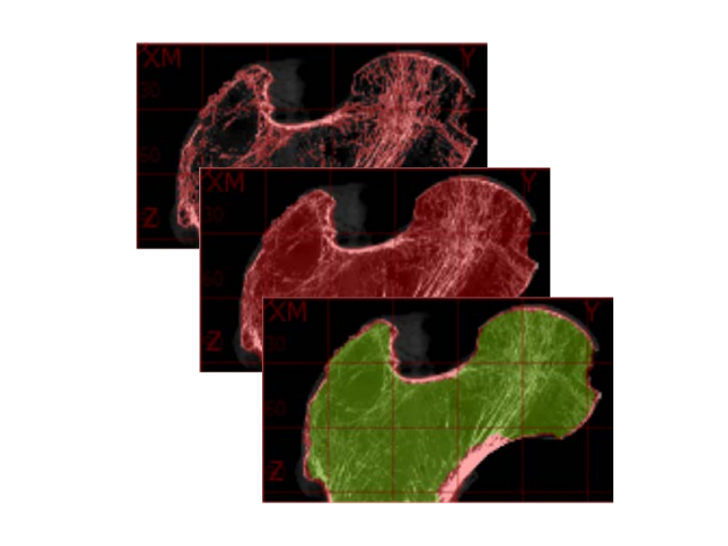 Segementation Overlays